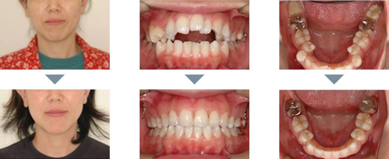 治療前と治療後の比較