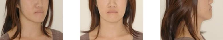 治療後顔貌