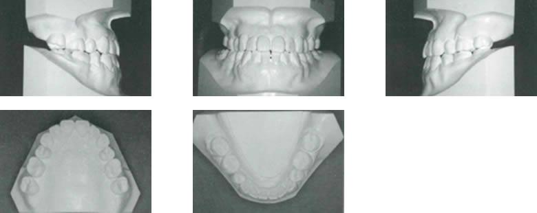治療後顔模型