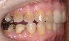 咬合は中切歯、側切歯、犬歯のみ。小臼歯、大臼歯の開咬合を呈していた。左顎関節に開口時疼痛を認めた