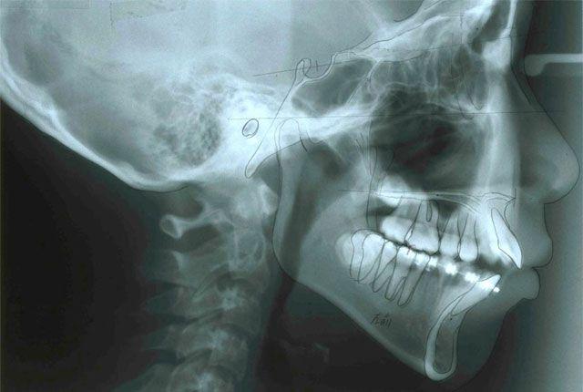 頭部X線規格写真(セファロ)