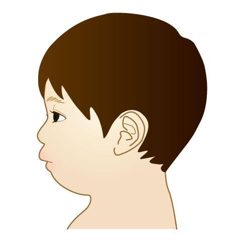 あごの前後関係が原因の出っ歯イラスト