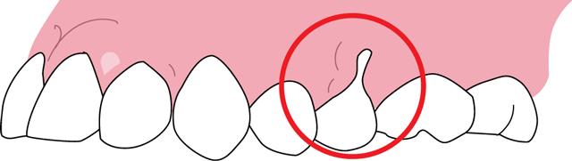 歯根の露出