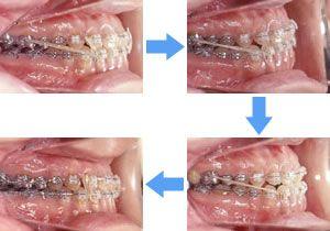 矯正治療中の歯の動き