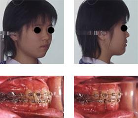 抜歯の治療例