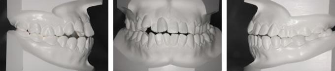 矯正治療を始める前の歯並び