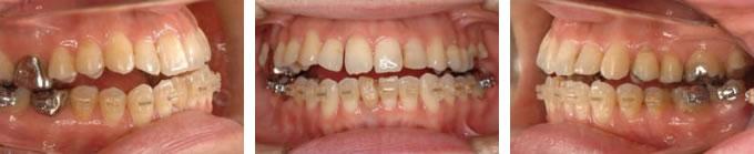 当院の来院時:非抜歯矯正を行った歯並び