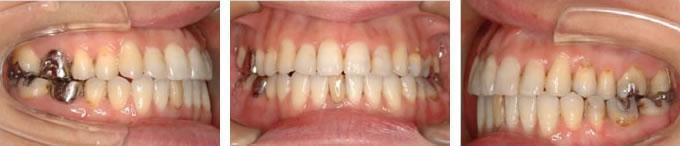 動的処置後の歯並び