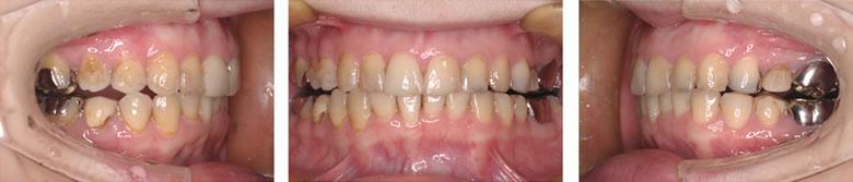 マウスピースによる矯正治療を行った歯並び