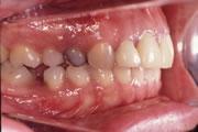 連携歯科医療の治療例
