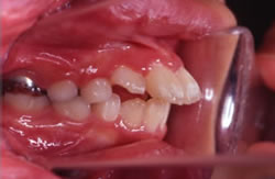 永久歯が生えそろう前の矯正治療例