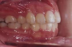 永久歯が生え揃う前の矯正治療例