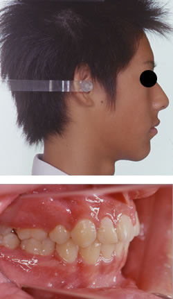 永久歯が生え揃ってからの矯正治療例