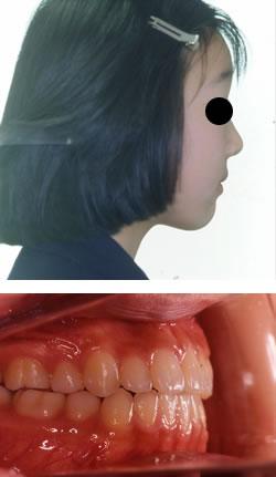 永久歯が生えそろってからの矯正治療例