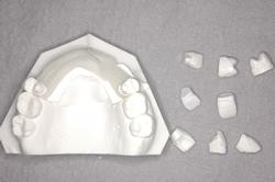 歯型の模型