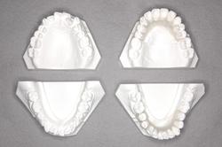 歯列の模型