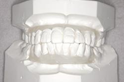 非抜歯の歯列