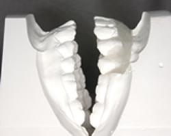 下顎の比較