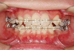 前歯のブラケット