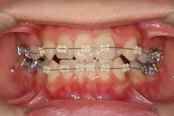 歯根の確認と、ワイヤー交換