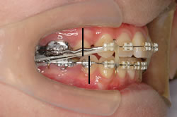 第二小臼歯が後方に移動