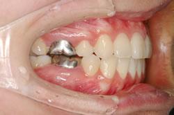 非抜歯の側貌