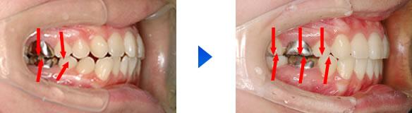 歯根の平行性