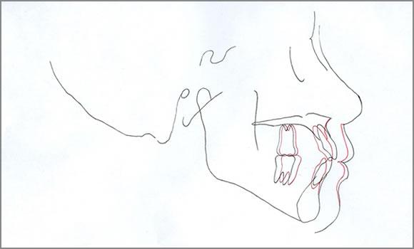 大臼歯の移動