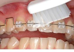 金具(ブラケット)と歯ぐきのあいだを、よく磨いてください